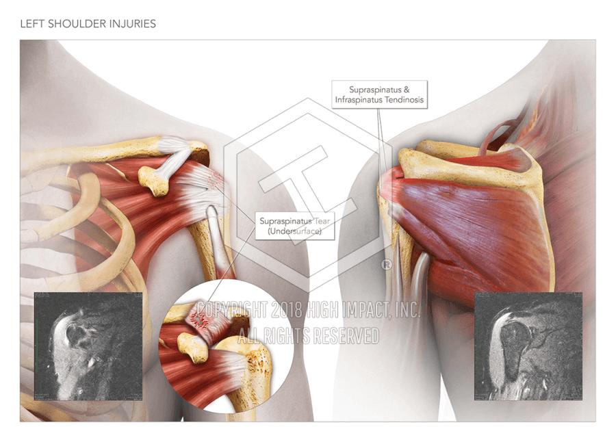 Left Shoulder Injuries High Impact Visual Litigation Strategies