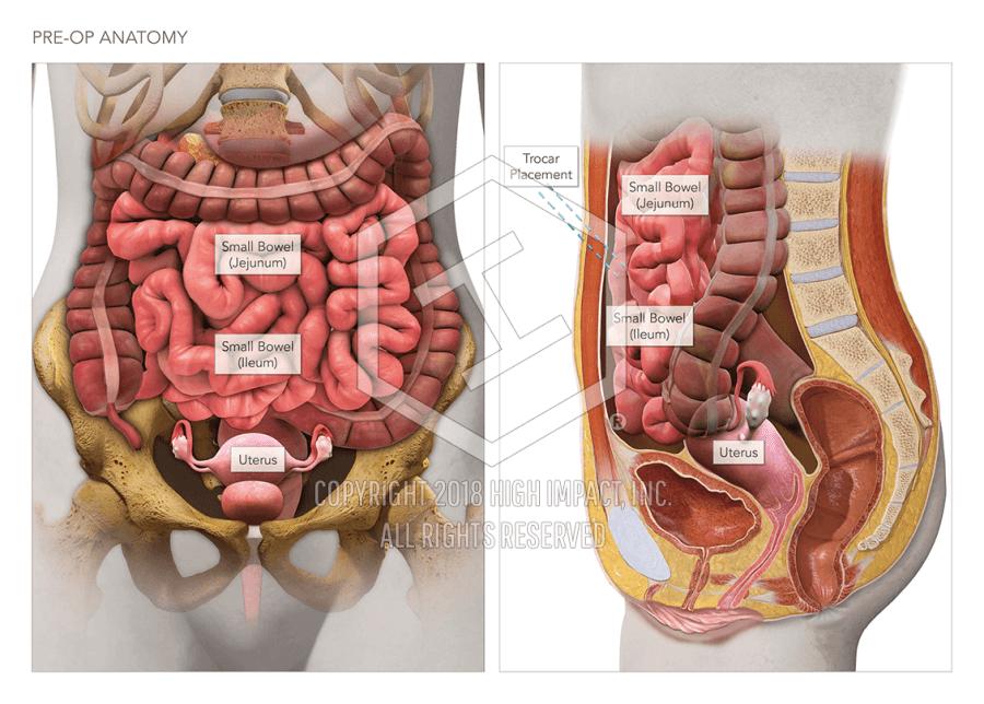 Bowel Anatomy Pre-Op & Post-Op   High Impact® Visual Litigation ...