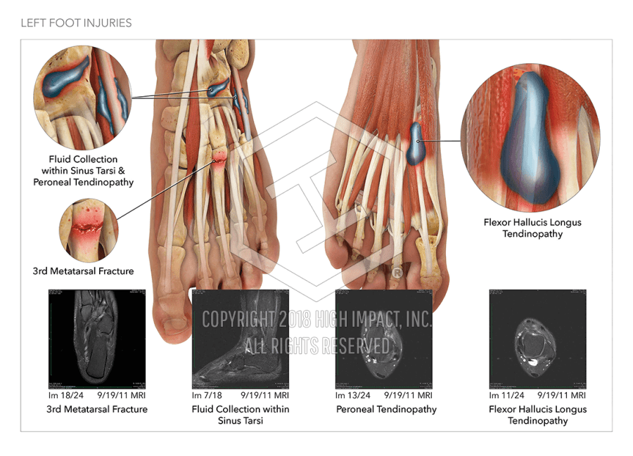 Left Foot Injuries | High Impact® Visual Litigation Strategies™