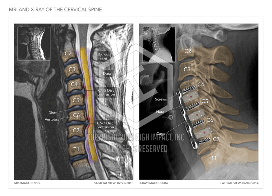 Mri X Ray Of Cervical Spine High Impact Visual Litigation