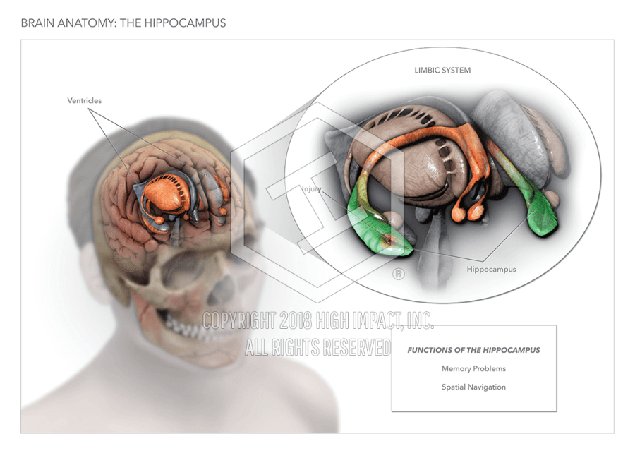 The Brain Hippocampus High Impact Visual Litigation Strategies