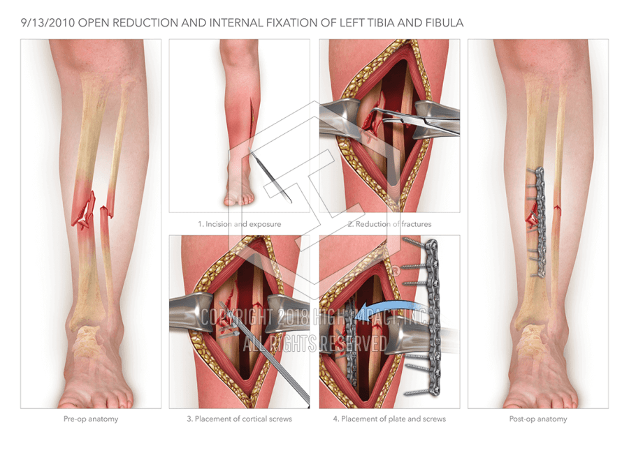 Open Reduction Internal Fixation Of The Tibia And Fibula High