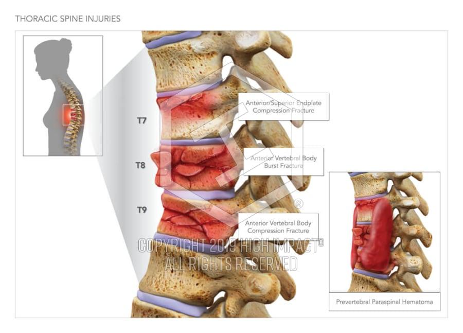 Thoracic Spine Injuries High Impact Visual Litigation Strategies