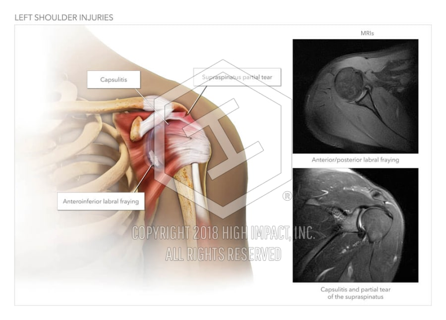 Left Shoulder Injuries High Impact Visual Litigation Strategies