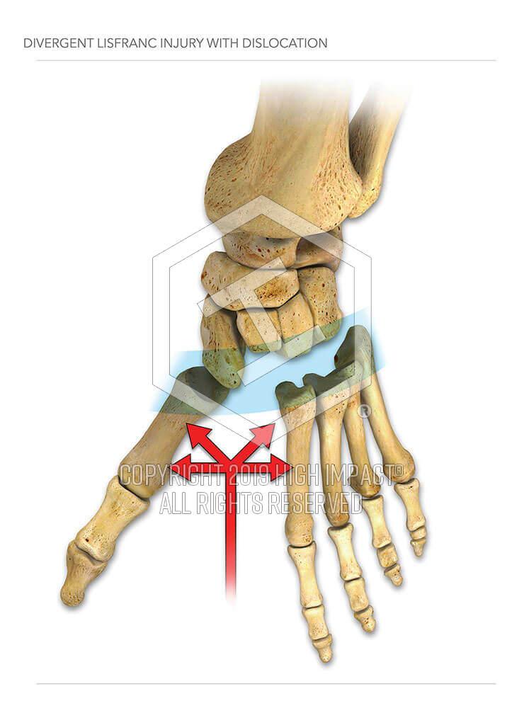 Divergent Lisfranc Injury with Dislocation | High Impact® Visual Litigation Strategies™