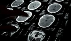 $29 Million Recovery In A Brain Injury Case