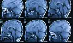 Why Did My Husband Have A Stroke During Surgery?