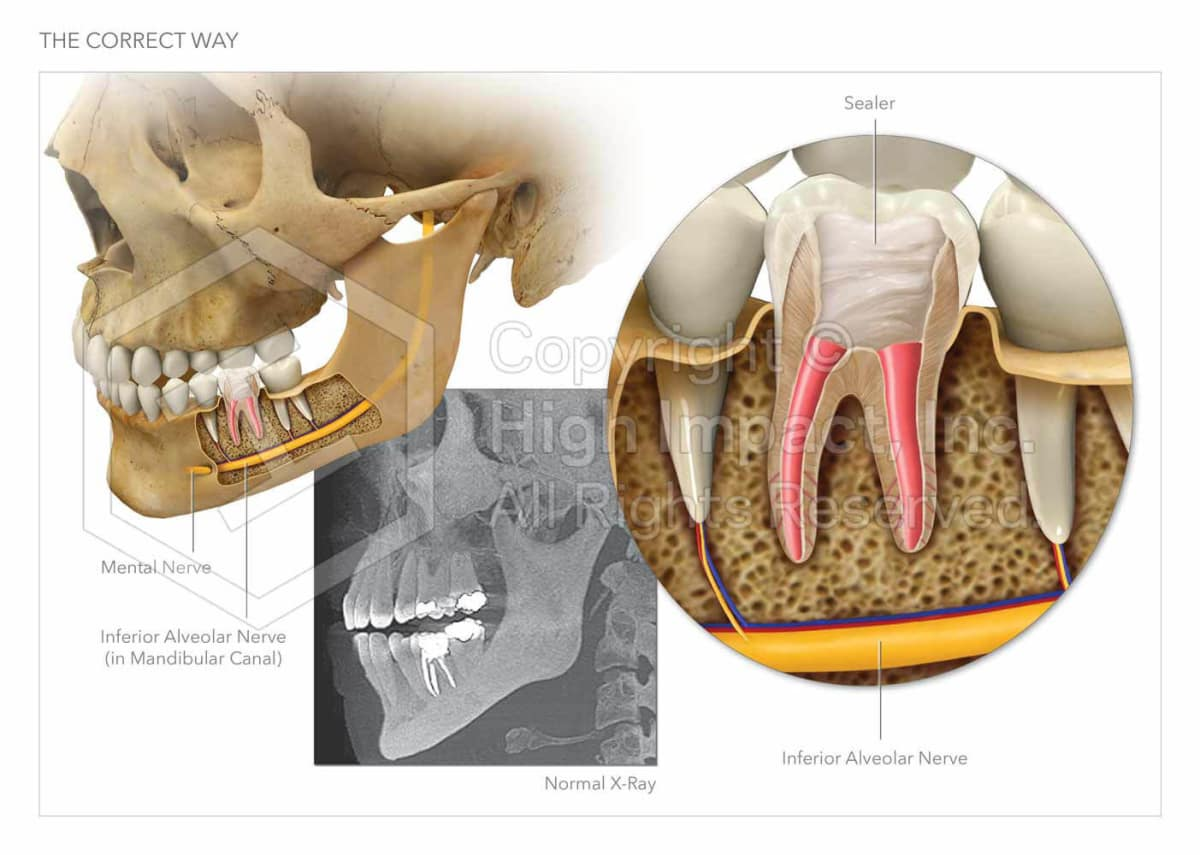 $5 35M Verdict: Illustrating the Painful Root of Dental