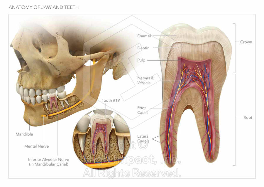 $5.35M Verdict: Illustrating the Root of Dental Malpractice | High ...