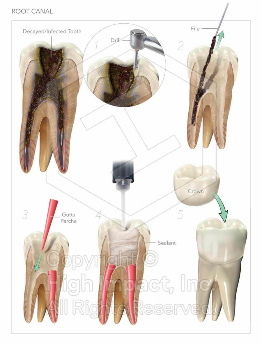 535m Verdict Illustrating The Root Of Dental Malpractice High