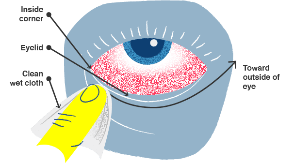 Illustration, how to clean an eye infected with pink eye