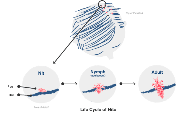 Illustration of the life cycle of nits (lice)