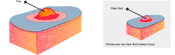Chickenpox vs MRSA illustrated
