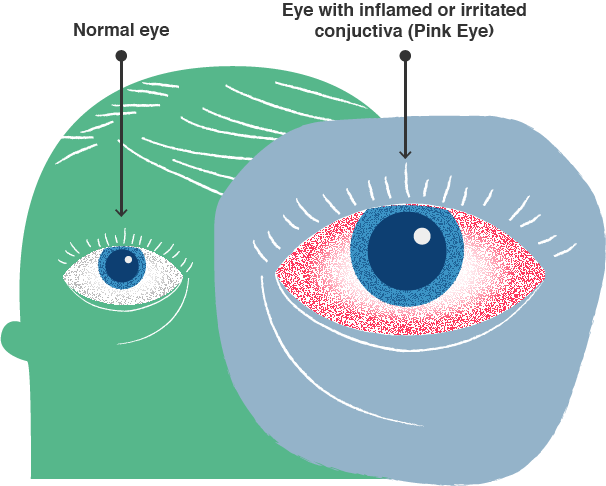 Illustration of a healthy eye vs infected pink eye