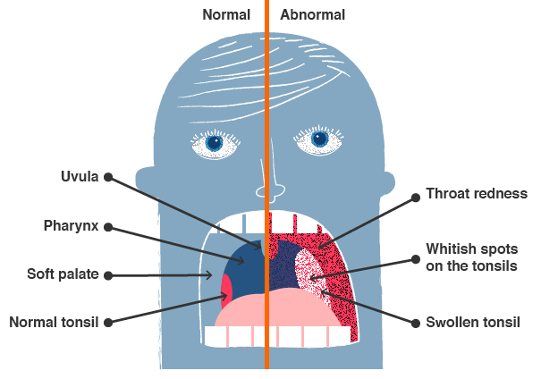 Illustration of the symptoms of strep throat