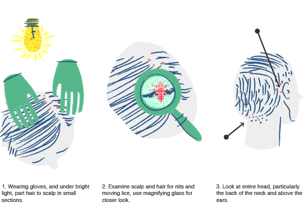 Illustration of how to find lice