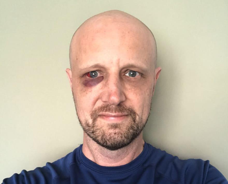 michael hartle krav maga black eye