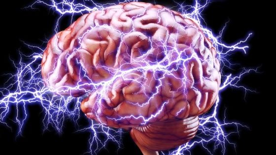 Flow Neuroscience Advertises Doing Electroshock Therapy on Yourself at Home. Should You Do It?