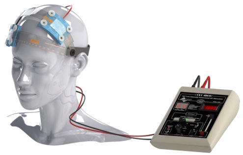Europe's Medically Permitted Transcranial Direct Current Stimulation Can Improve The Symptoms ...