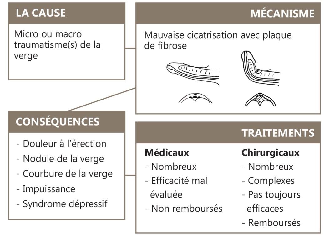 Maladie de lapeyronie et viagra