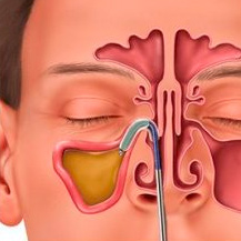 diagram of congested sinuses
