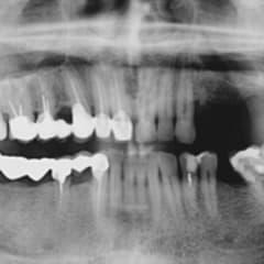 Oral and Maxillofacial Surgeon Thumbnail