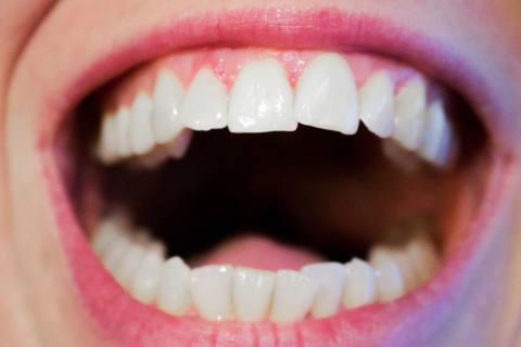 Gute Mundgesundheit ist der Schlüssel zur Vorbeugung von Diabetes
