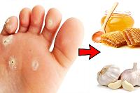 Get rid of warts or swollen skin on...