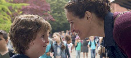 Treacher Collins syndrome Julia Roberts School bully