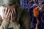 Dementia: A new drug has reversed the...