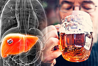 The most common cause of severe liver...