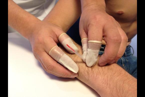 Traditional Japanese Acupuncture Treatment - 3
