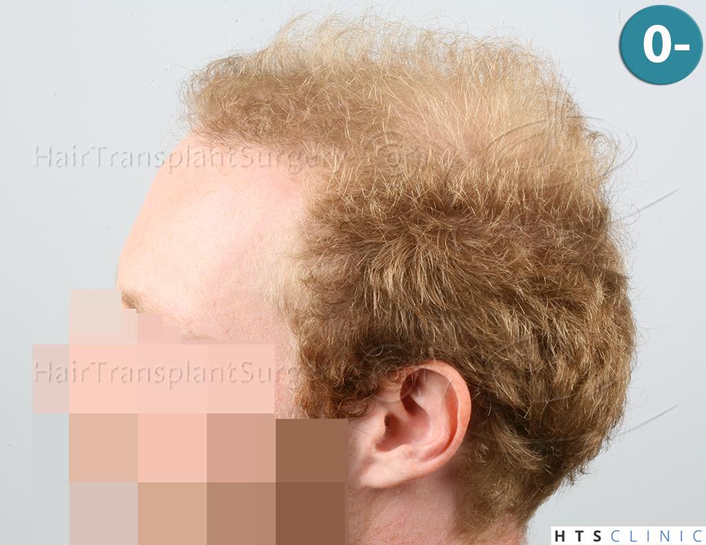 Dr.Devroye-HTS-Clinic-3556-FUT-3.jpg