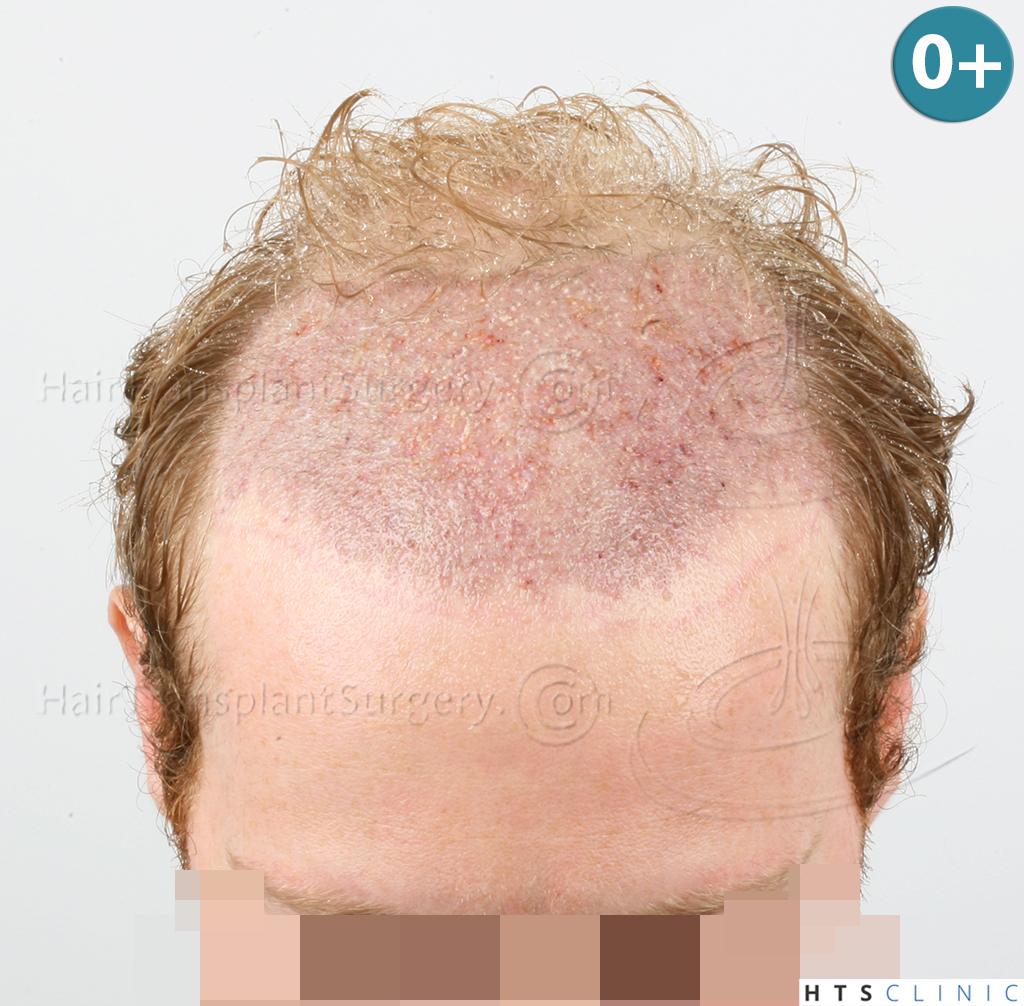 Dr.Devroye-HTS-Clinic-3556-FUT-8.jpg