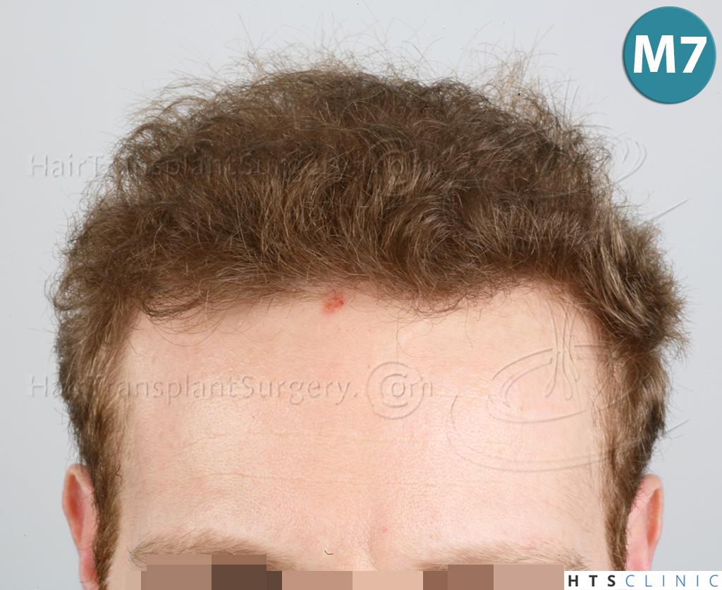 Dr.Devroye-HTS-Clinic-3556-FUT-13.jpg