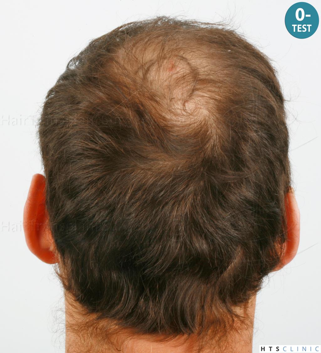 Dr.Devroye-HTS-Clinic-4418-FUE-Repair-3.jpg