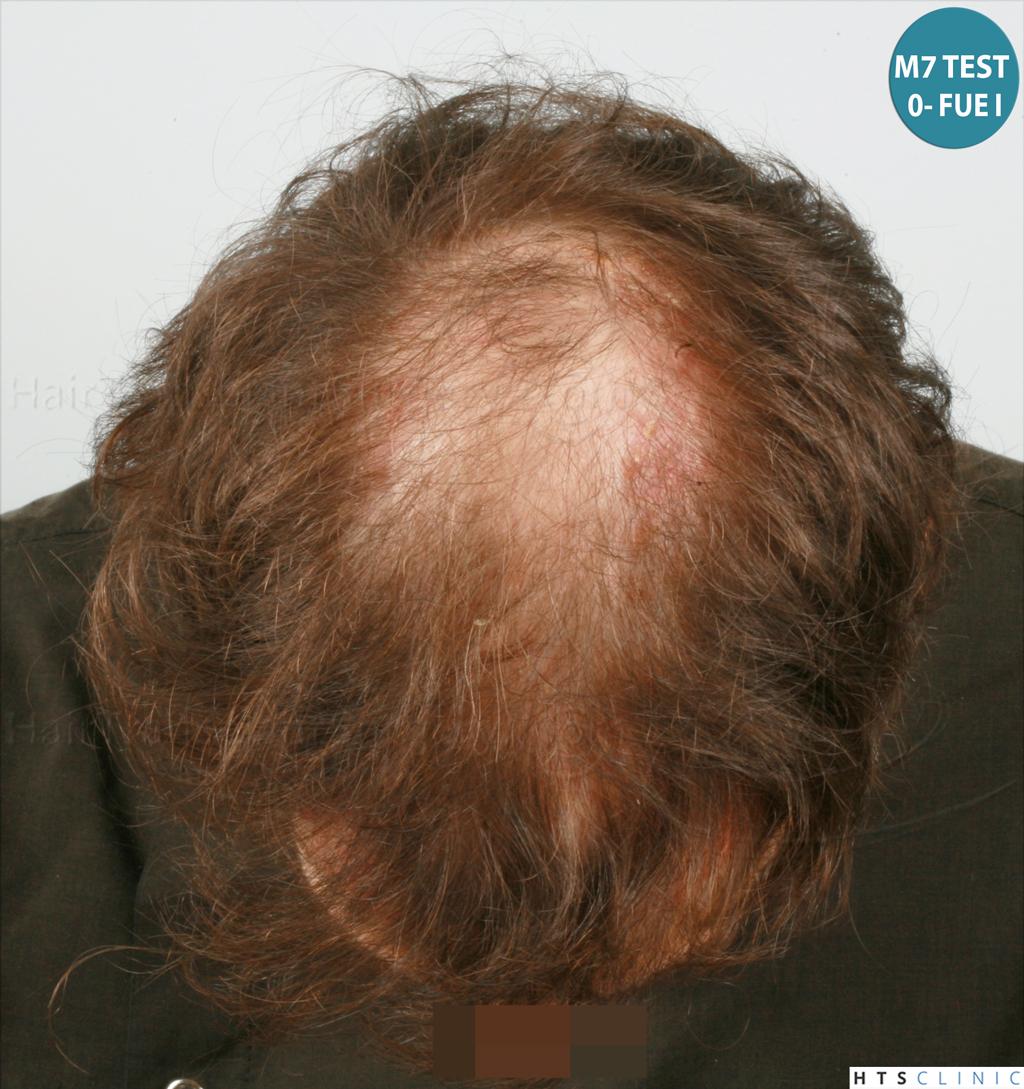 Dr.Devroye-HTS-Clinic-4418-FUE-Repair-8.jpg