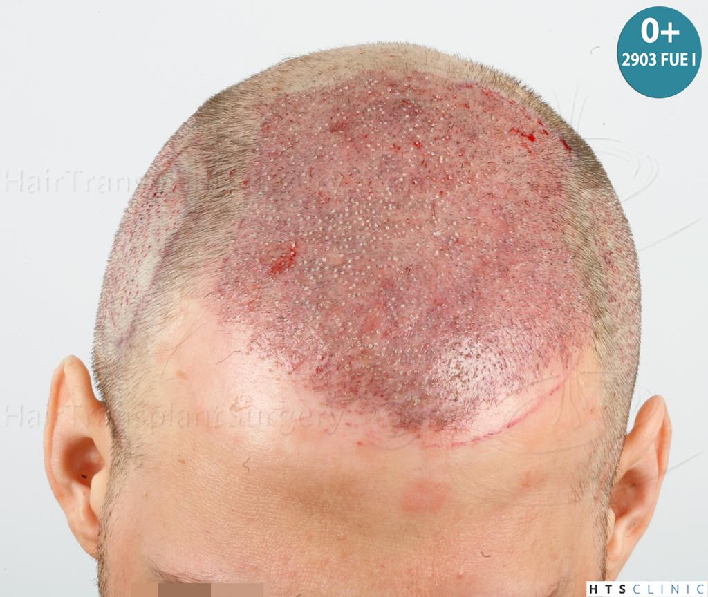 Dr.Devroye-HTS-Clinic-4418-FUE-Repair-14.jpg