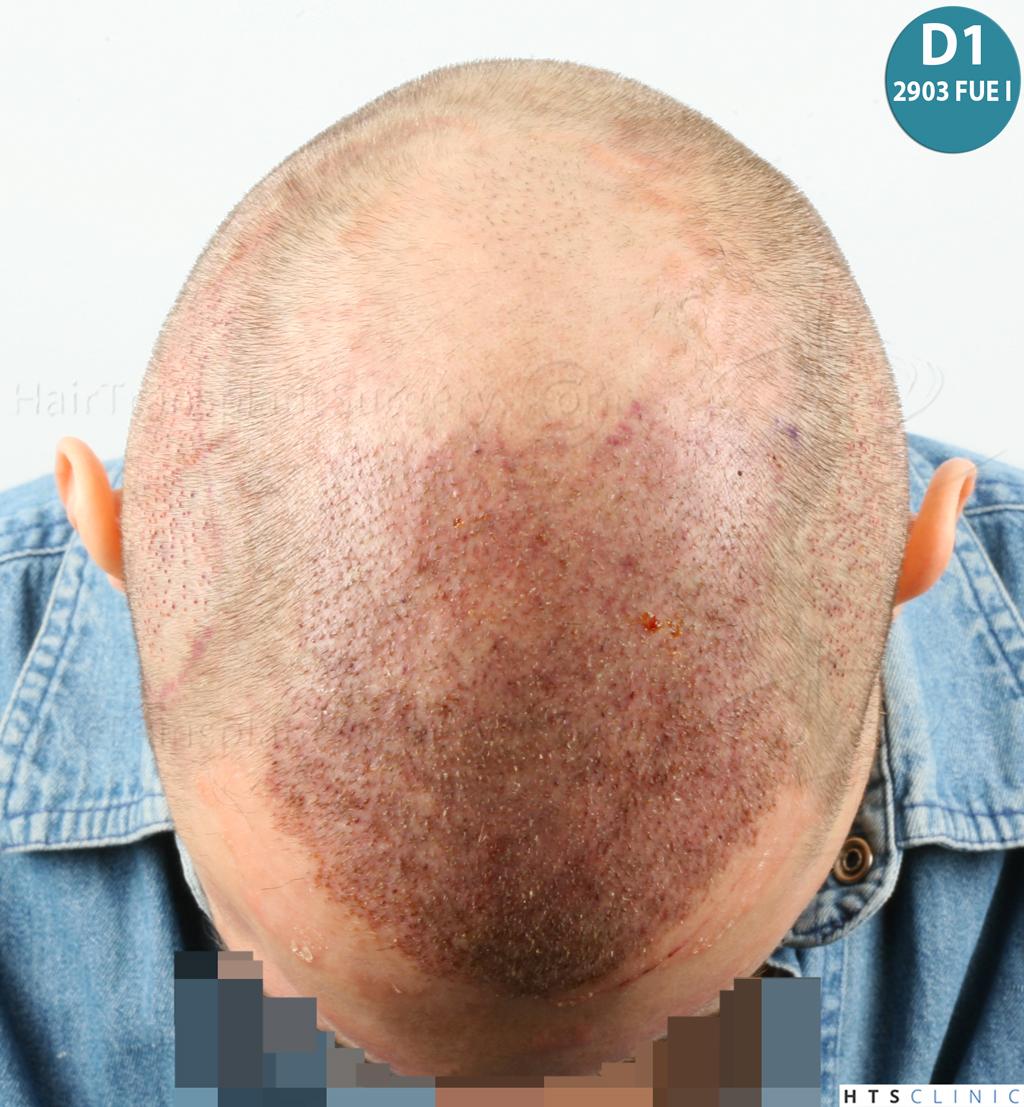 Dr.Devroye-HTS-Clinic-4418-FUE-Repair-15.jpg