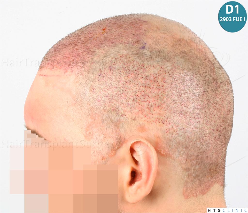 Dr.Devroye-HTS-Clinic-4418-FUE-Repair-16.jpg
