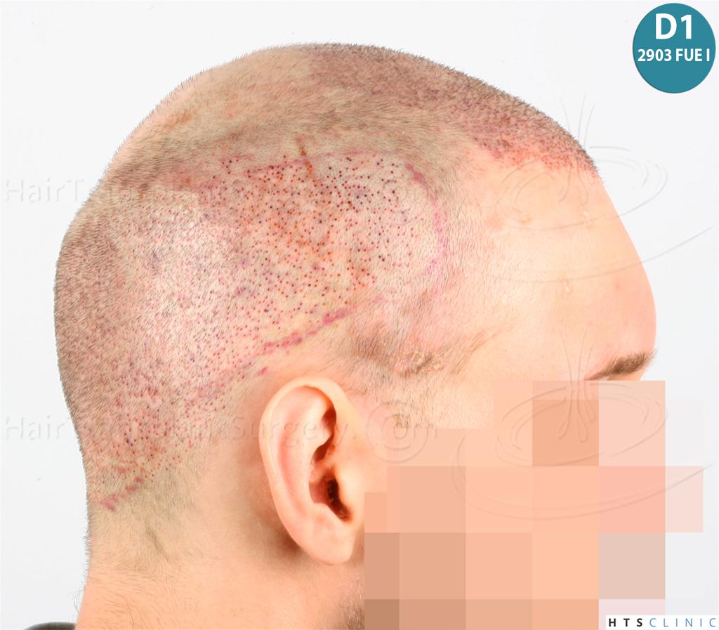 Dr.Devroye-HTS-Clinic-4418-FUE-Repair-17.jpg