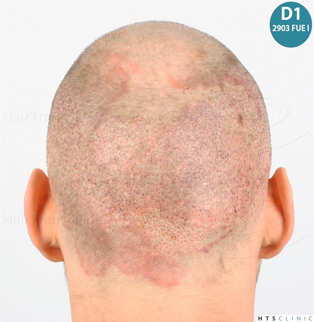 Dr.Devroye-HTS-Clinic-4418-FUE-Repair-18.jpg