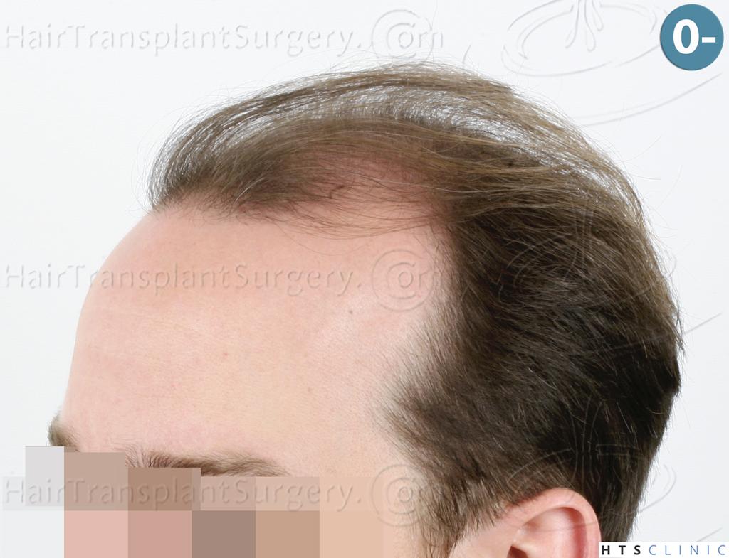 Dr.Devroye-HTS-Clinic-3878-FUE-NW-V-4.jpg