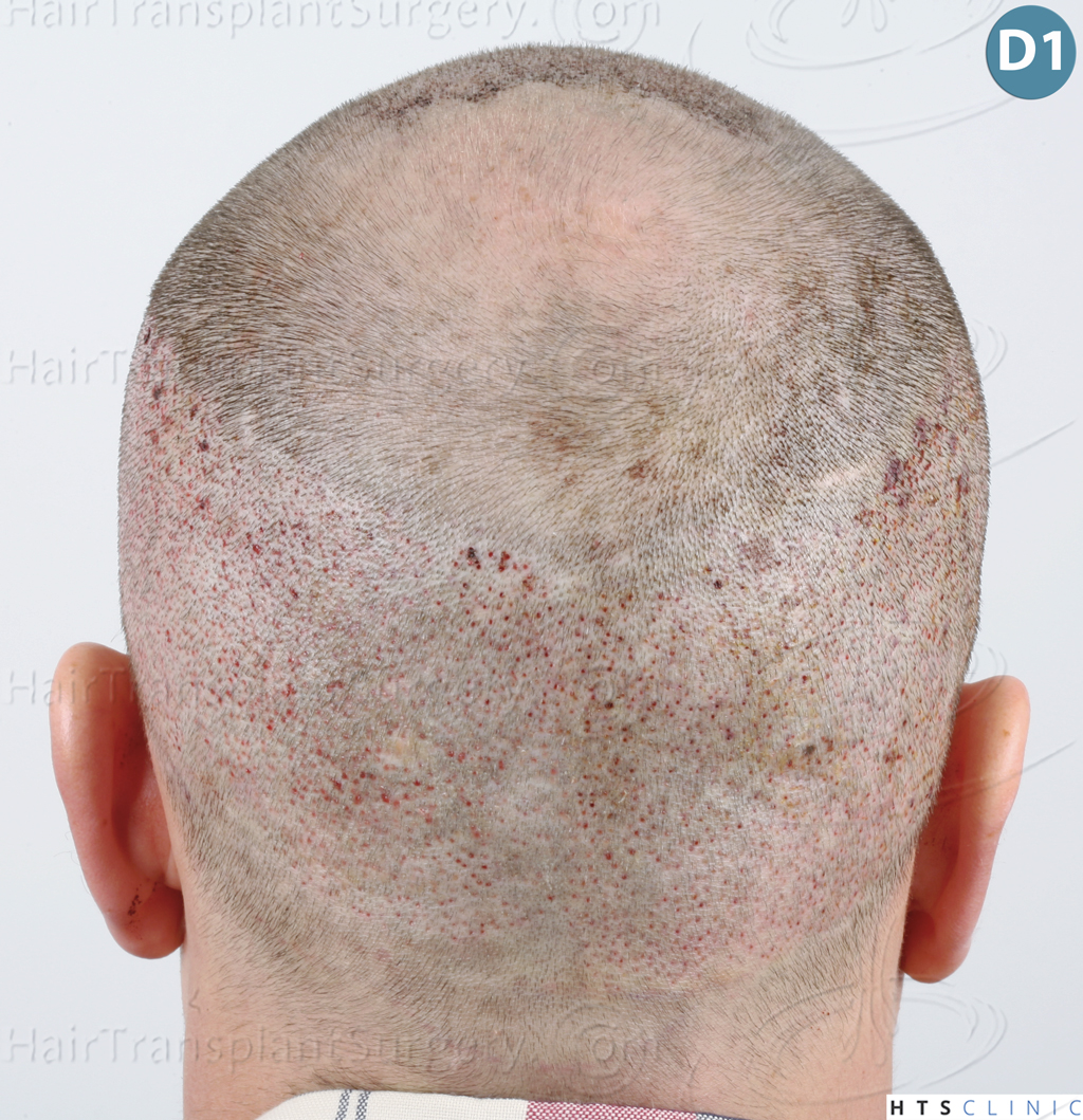 Dr.Devroye-HTS-Clinic-3878-FUE-NW-V-13.jpg
