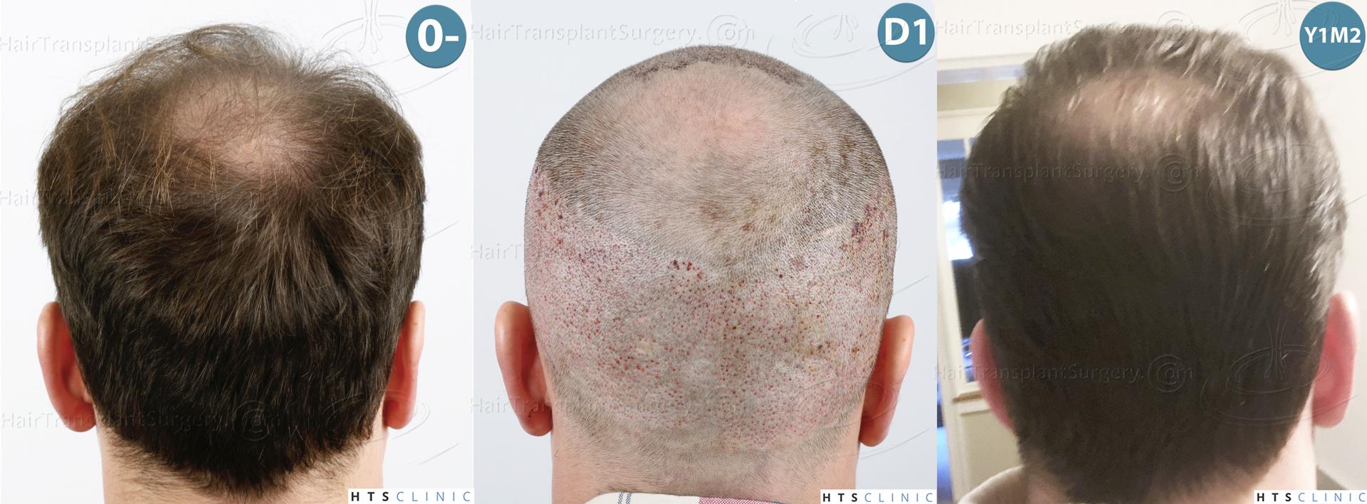 Dr.Devroye-HTS-Clinic-3878-FUE-NW-V-Montage-5.jpg