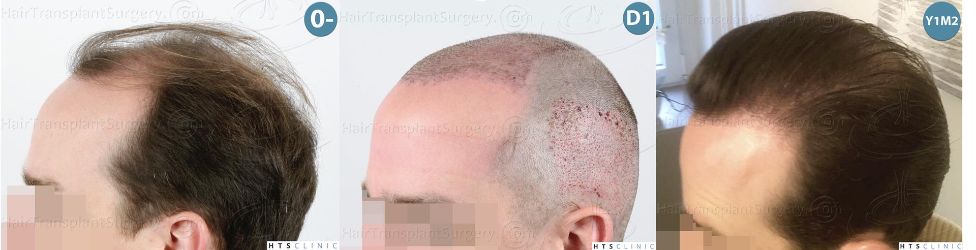 Dr.Devroye-HTS-Clinic-3878-FUE-NW-V-Montage-3.jpg