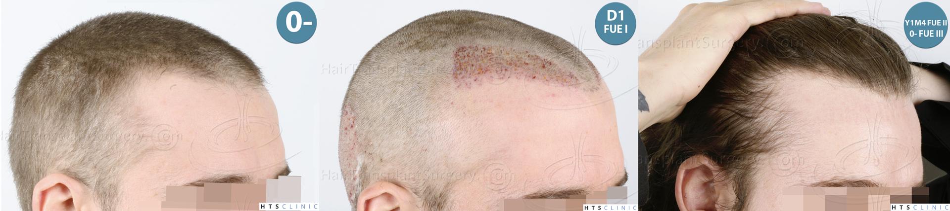 Dr.Devroye-HTS-Clinic-6132-_2011_1232_2889_-FUE-Barbe-et-cheveux-Montage5.jpg