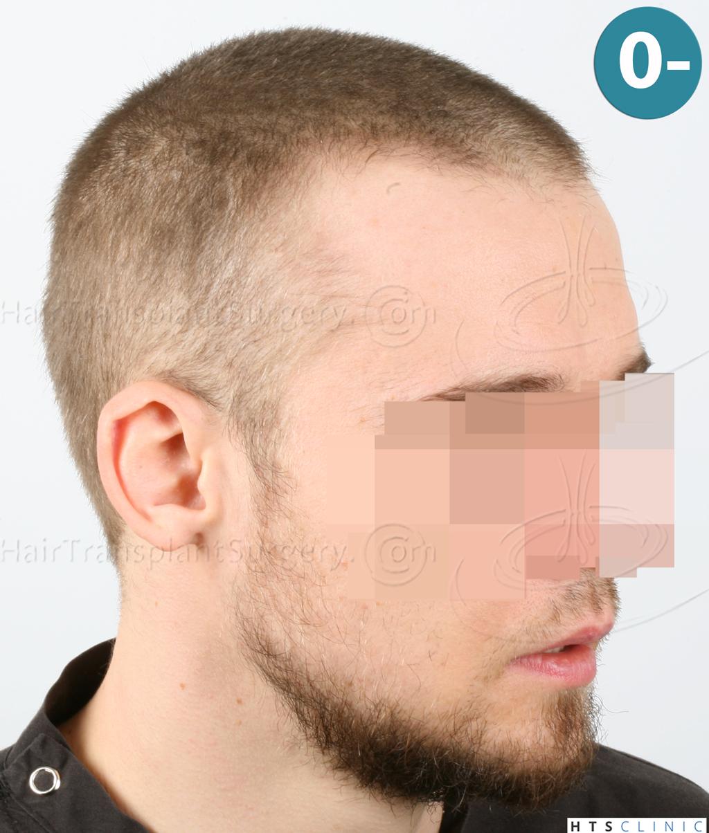 Dr.Devroye-HTS-Clinic-6132-_2011_1232_2889_-FUE-Barbe-et-cheveux-6.jpg