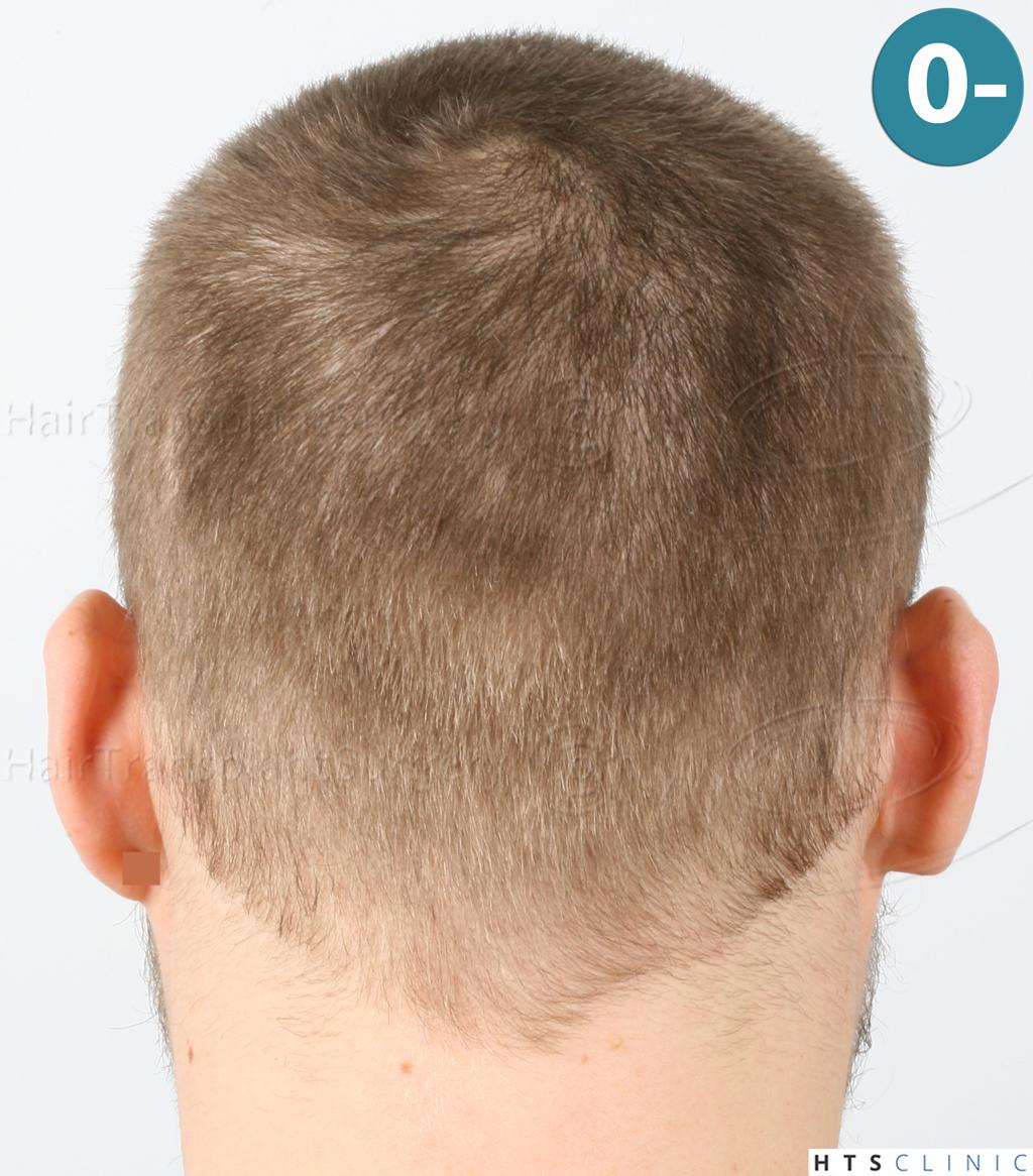 Dr.Devroye-HTS-Clinic-6132-_2011_1232_2889_-FUE-Barbe-et-cheveux-7.jpg