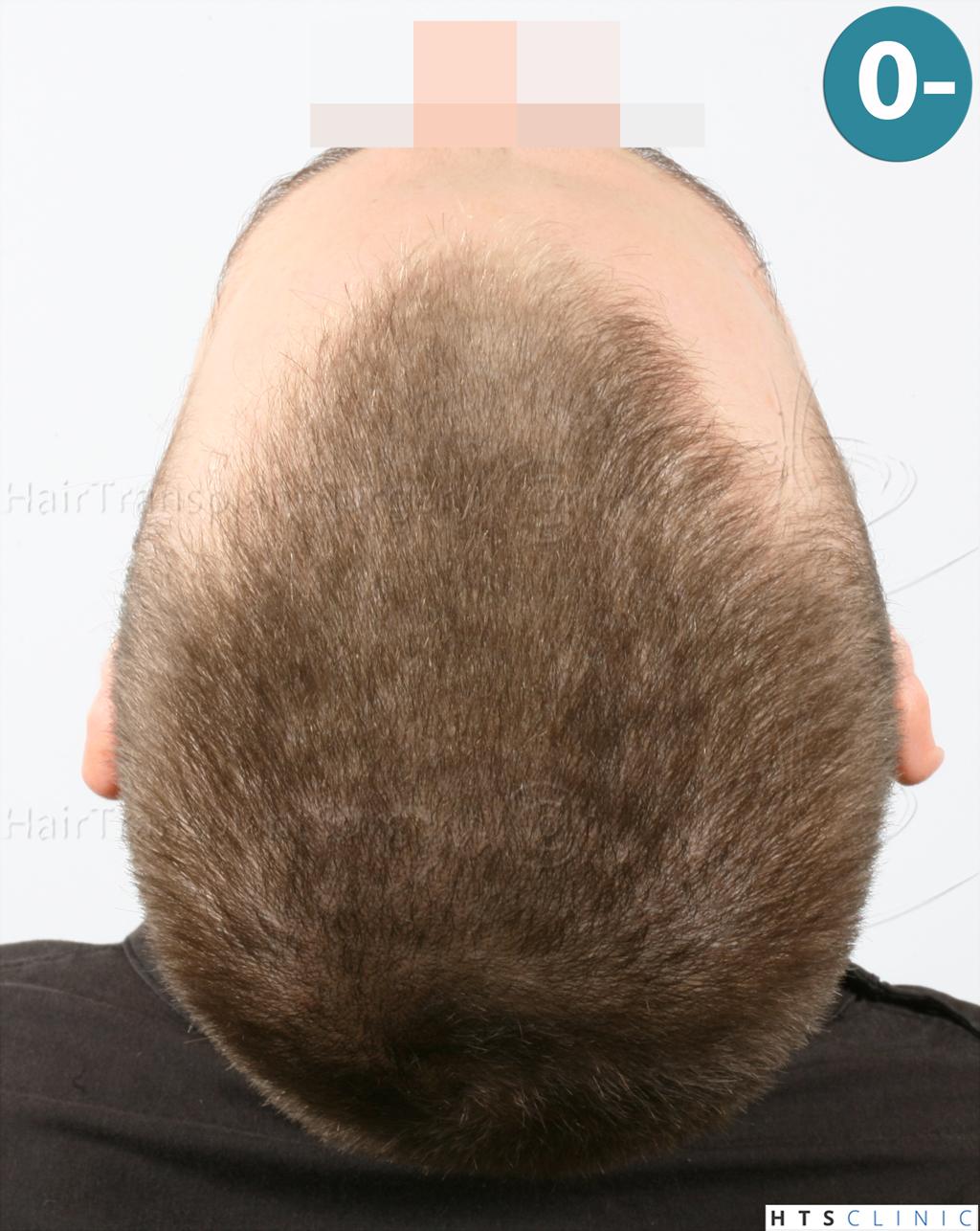 Dr.Devroye-HTS-Clinic-6132-_2011_1232_2889_-FUE-Barbe-et-cheveux-8.jpg